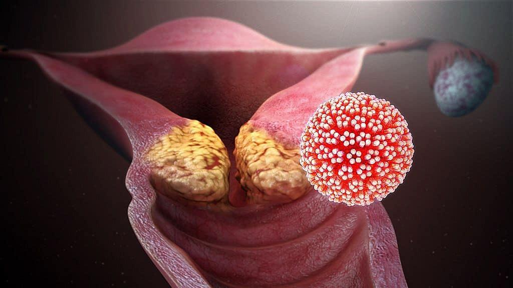 emberi papillomavírus és terhesség
