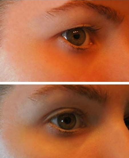 a szemhéjon lévő papillómák kezelést okoznak