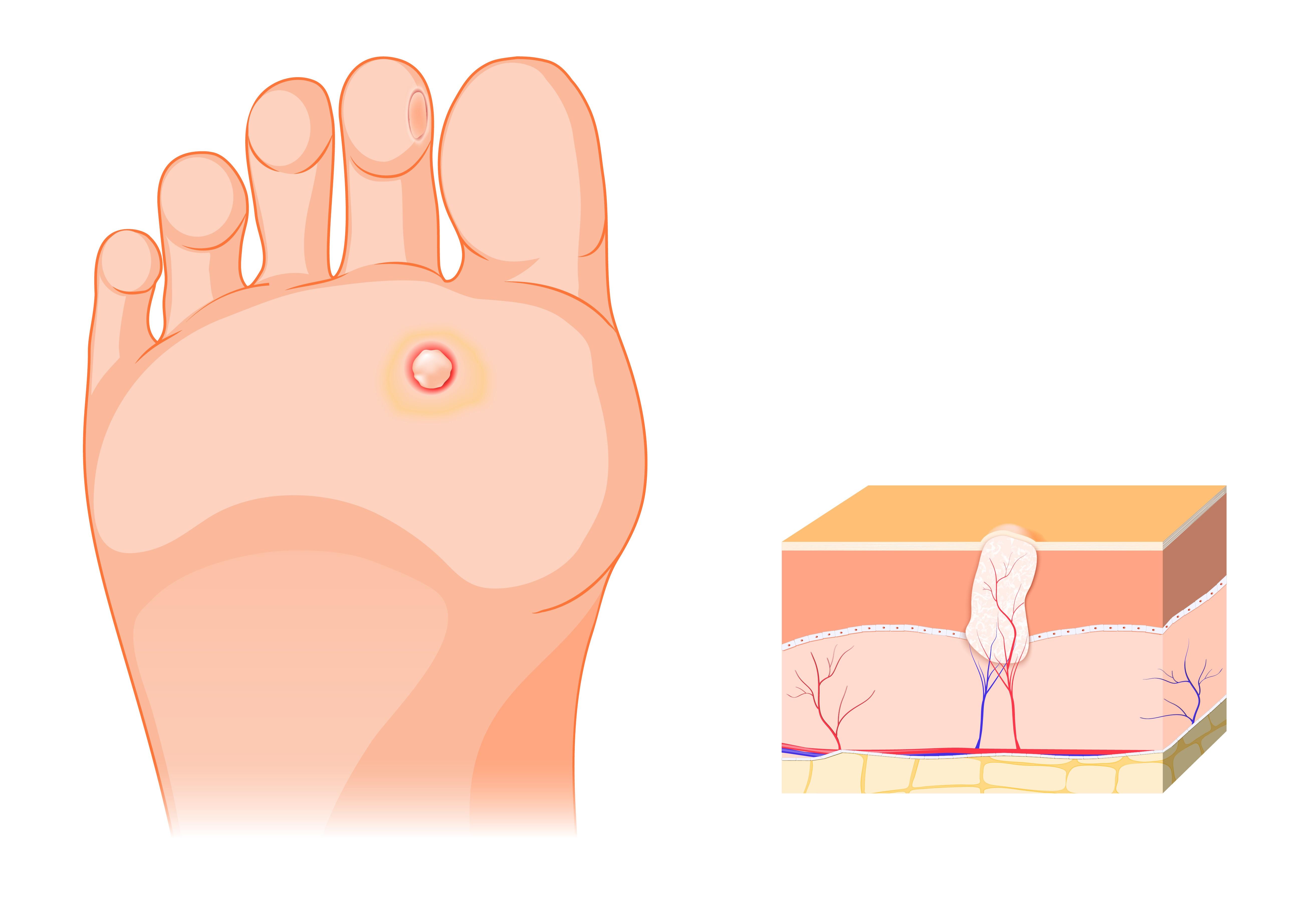 giardiasis a testben