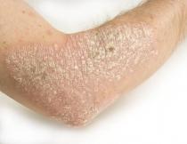 hpv a hólyagban enterobiasis patogenezis