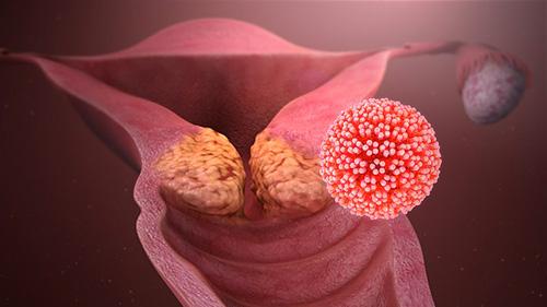 Veszélyes tévhitek a HPV-fertőzésről   Neumann Easy Testing