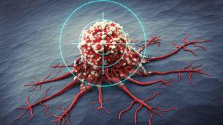 Molekuláris aláírás a hármas negatív emlőrák eredményeire - Tudományos hírek