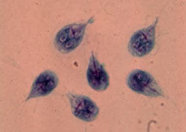 káposzta giardiasis