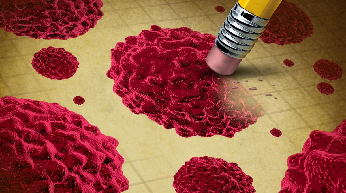 papilloma vírus és vastagbélrák