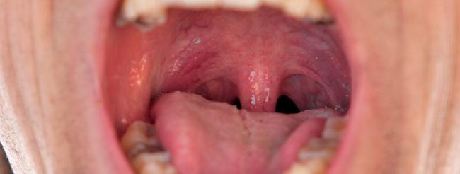 papillómák a bőr kezelésén hpv magas kockázatú pozitív és normális pap