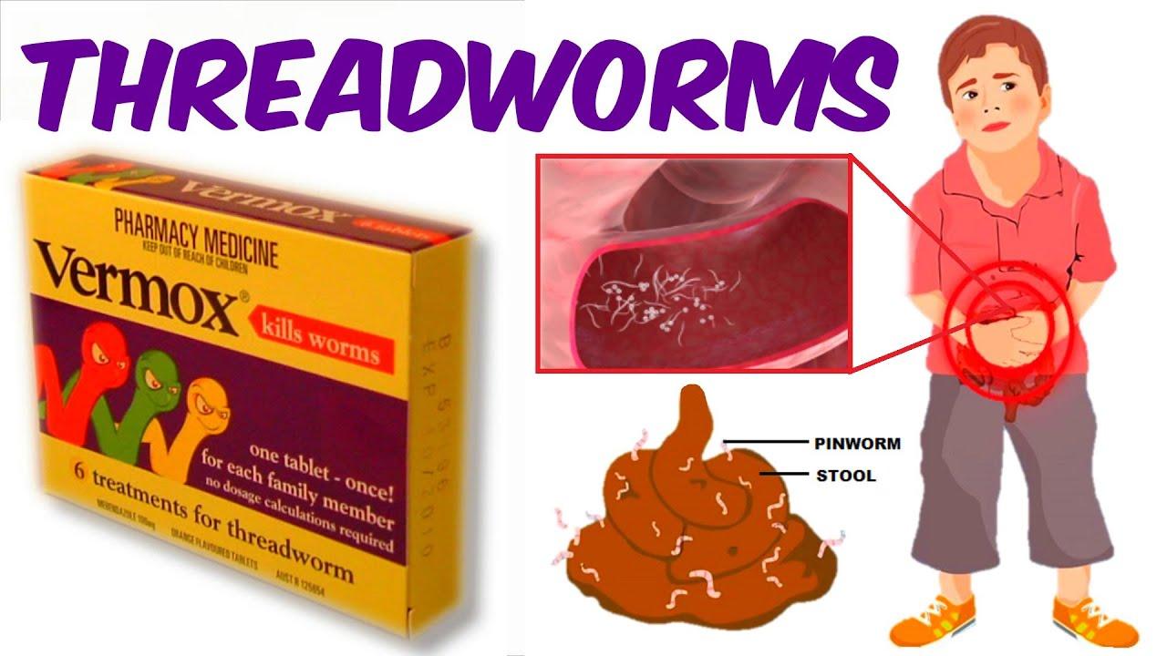 pinworms helyi kezelés