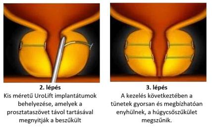 az oxyuris equi biológiai körforgása papillomas murmansk