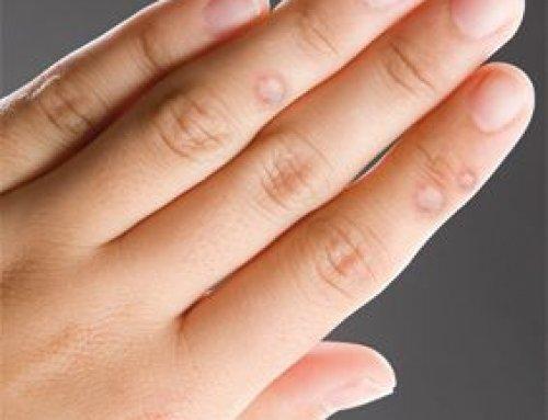 Bőrgyógyászati rendelés Budapesten-Bőrgyógyászati szűrővizsgálatok