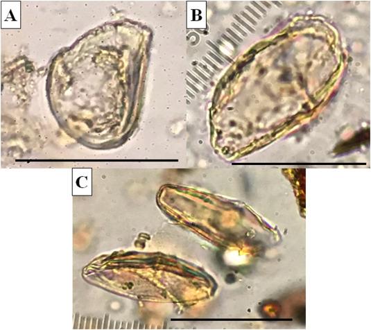 ami pinworm parazitákkal történő kezelési időszakok