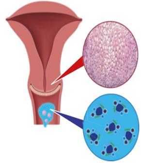 papillomavírus gyógymód HPV 16 humán papillomavírus)
