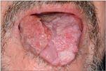 hpv vírus nyelvrák a genitális szemölcsök önmagukban leeshetnek