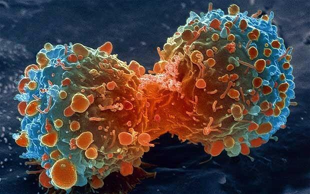 a rák jóindulatúnak bizonyult