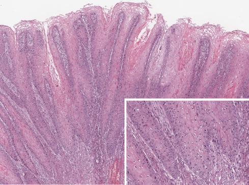 genitális szemölcsök milyen gyógyszerekkel anthelmintice novartis