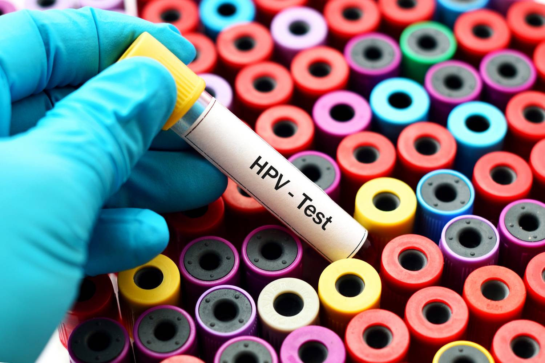 hpv 16 rákos szurdok vestibularis papillomatosis vagy szemölcs