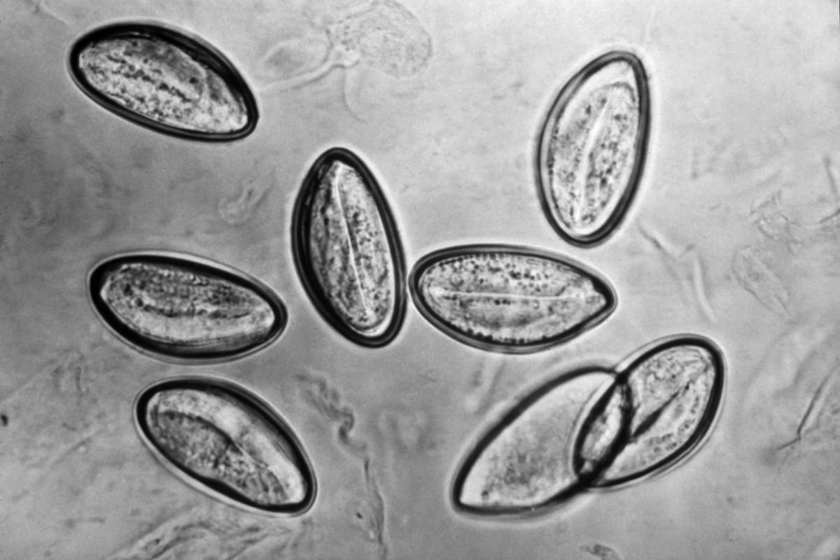 enterobius vermicularis óvoda srpski jezik kontroll 5 razred padezi számára