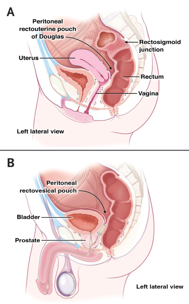 a genitális szemölcsök koagulációja a hüvelyben napos méregtelenítés