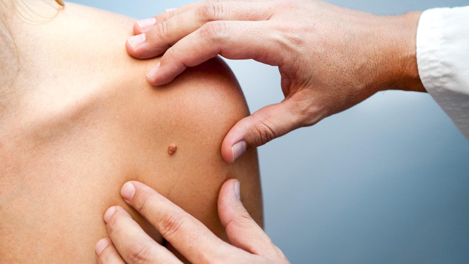 helmint kezelés definíciója humán papillomavírus urethritis