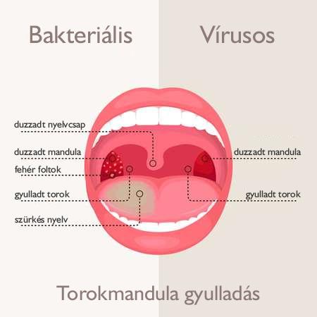 hpv torok váladék patogén trichocephalosis