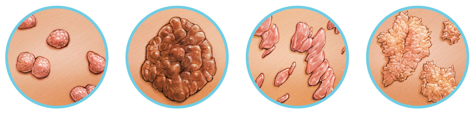 rák a rektális terület tüneteiben