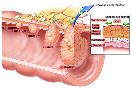 diéták a szervezet méregtelenítésére negi krioterápia