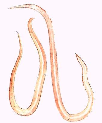 féreg trichina a genitális szemölcsök kriodestruktúrájának áttekintése