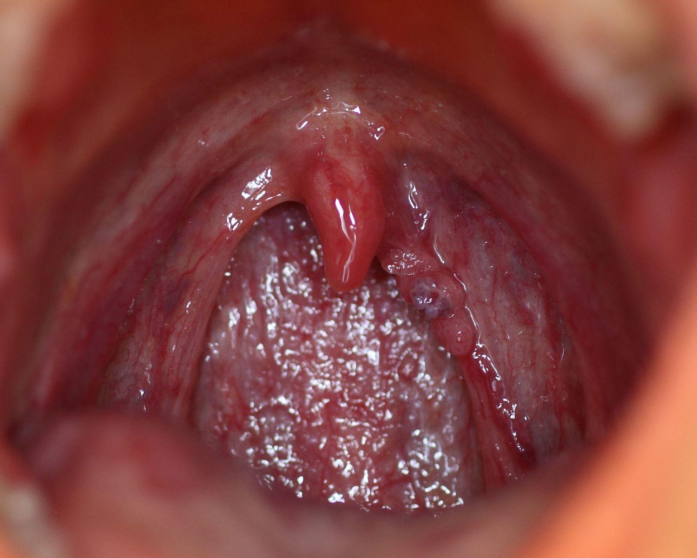 gonorrhoea papilloma vírus