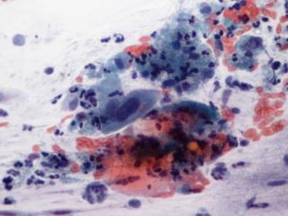 Méhnyakrák, péniszrák, garatrák a HPV vírus miatt
