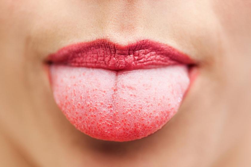 hpv vírus nyelvrák hogyan lehet megszabadulni a férgektől a férgekben, ha