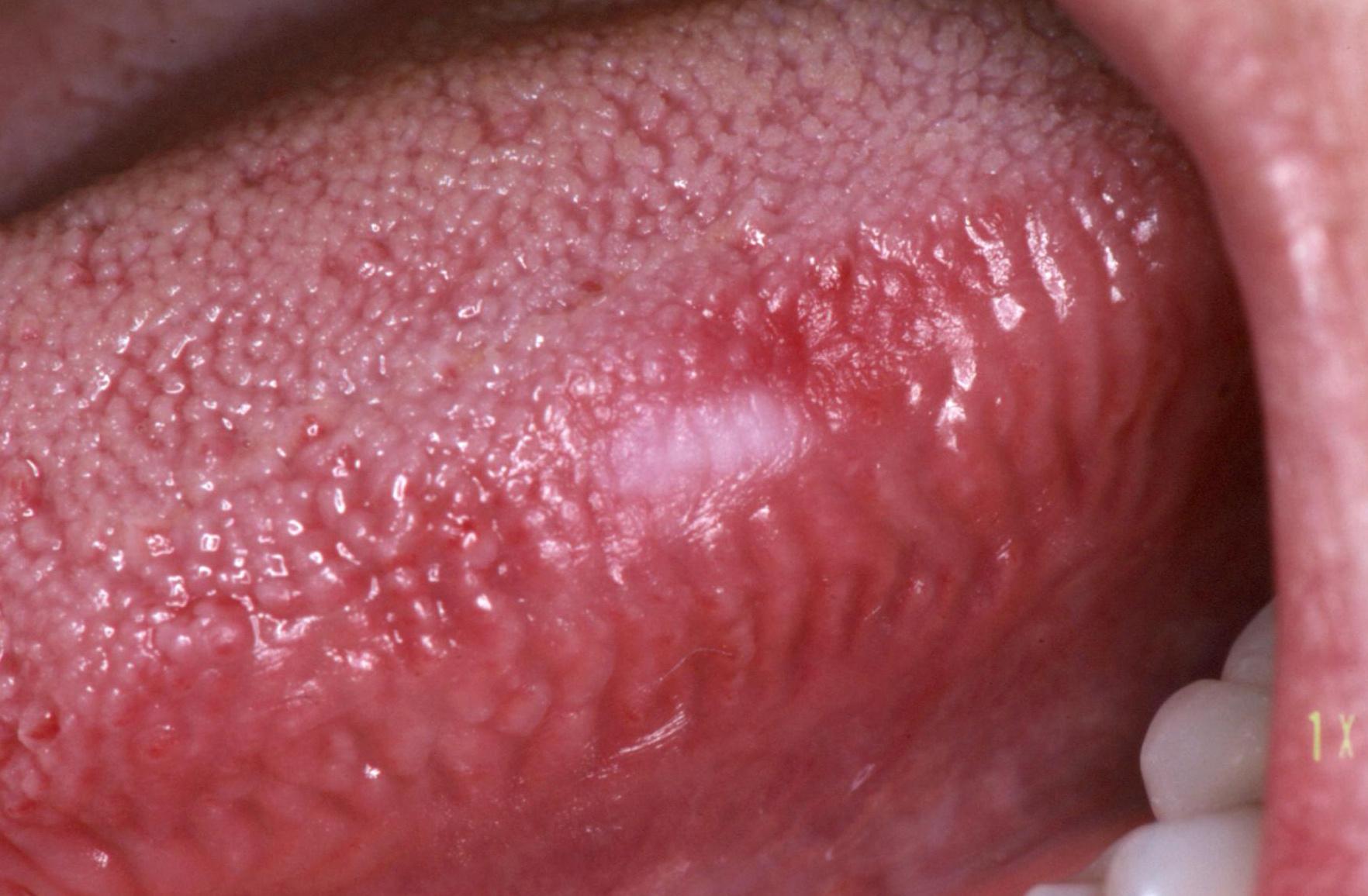 hpv vírus nyelvrák hogyan tudom eltávolítani a pinwormokat