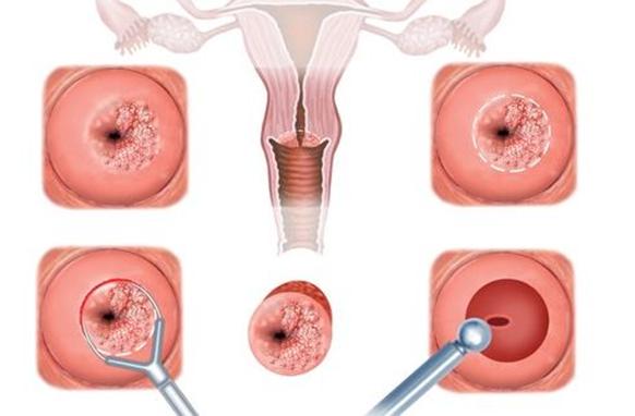 papillomavírus műtét terhes